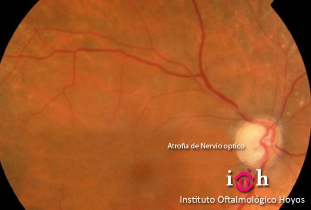 Cirugía GLAUCOMA