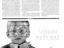 Reportage de la cirugía refractiva-5