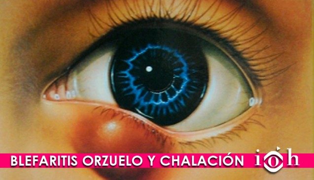 BLEFARITIS, ORZUELO Y CHALAZION