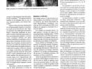 lasik hipermetropico en endotropias acomodativas refractivas franja ocular-2