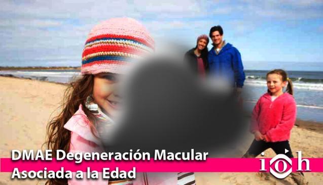 DMAE – Degeneración macular asociada a la edad