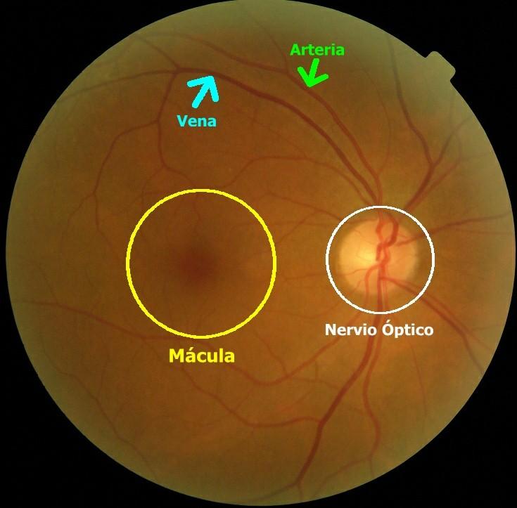 Retina-Normal