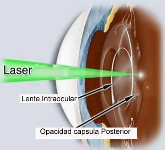 Capsulotomia YAG laser