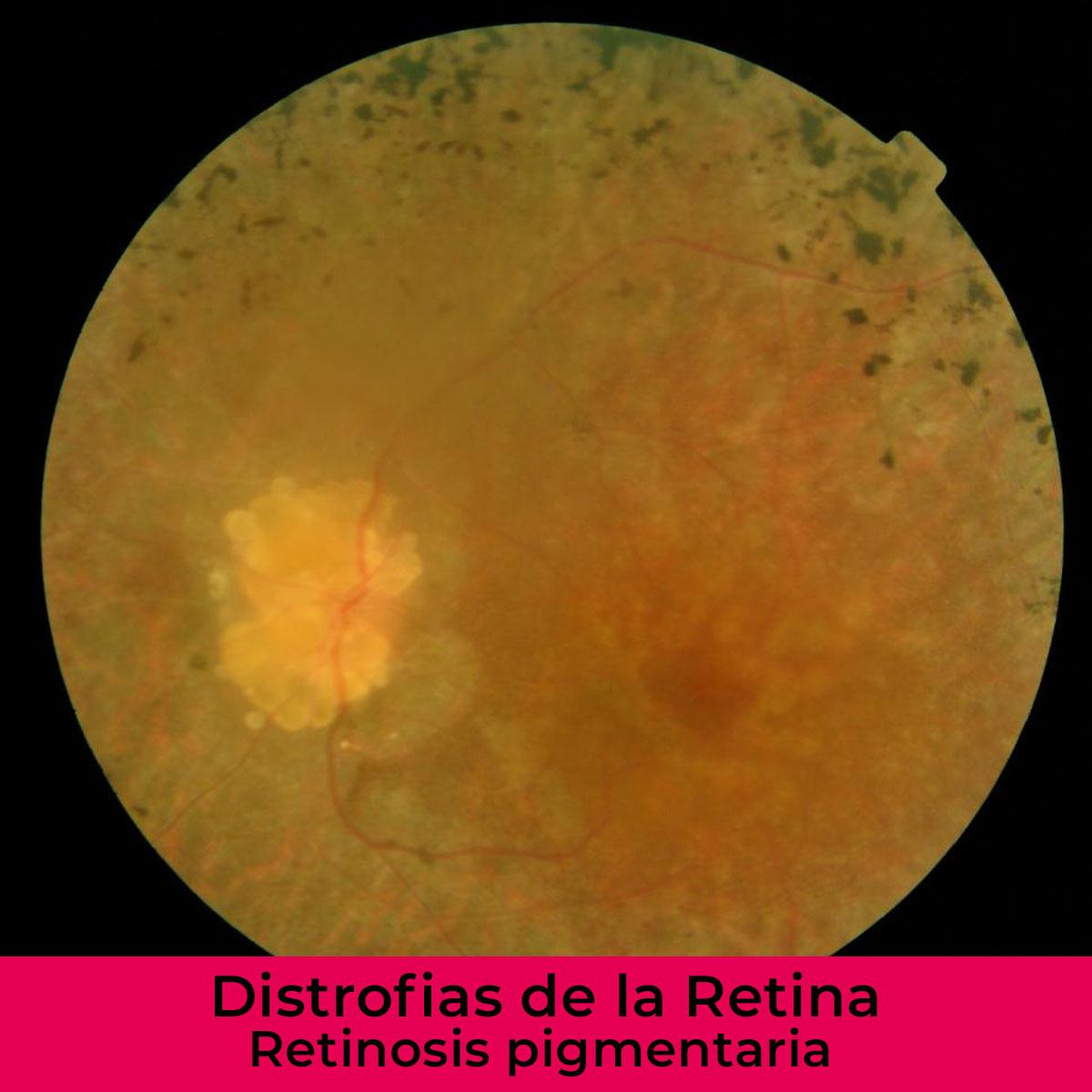 distrofias-de-la-retina-iohoyos